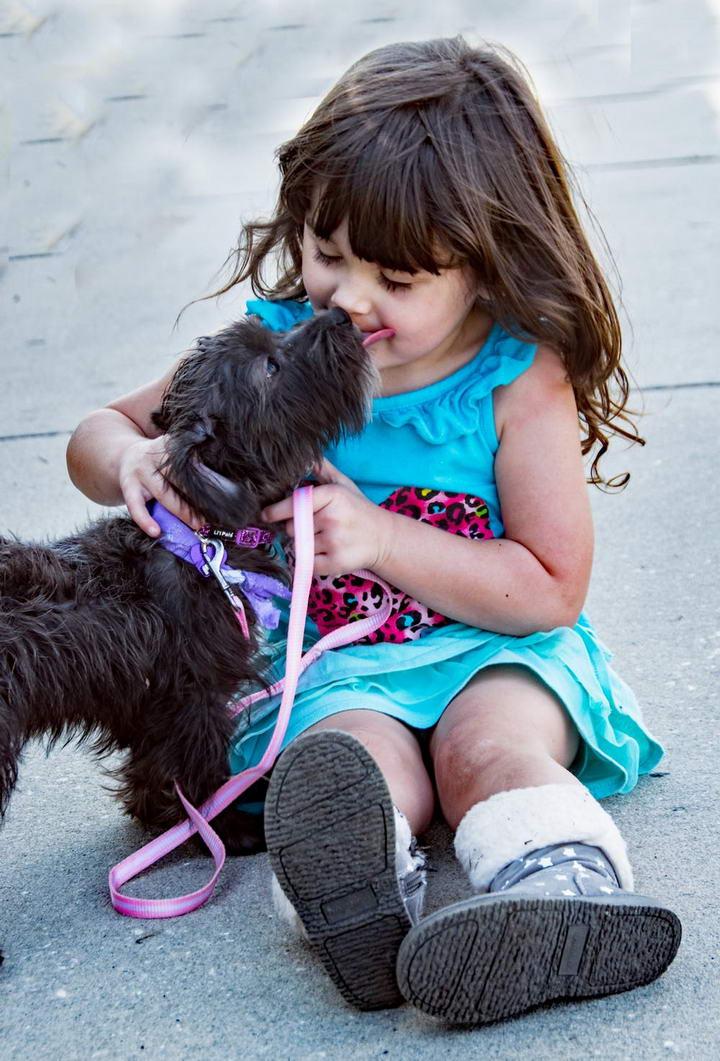注意了:因为被狗狗舔了一口,国外一女子四肢被截肢