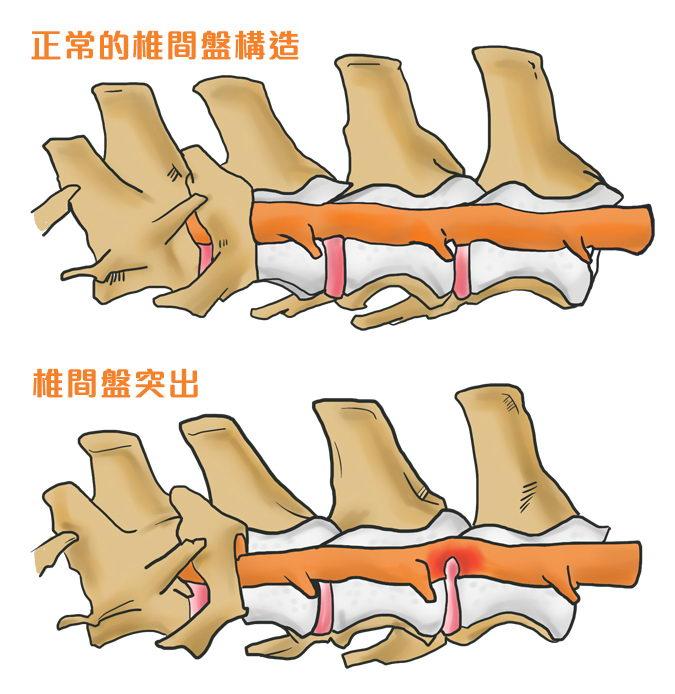 脊椎侧面图