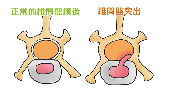 脊椎切面图